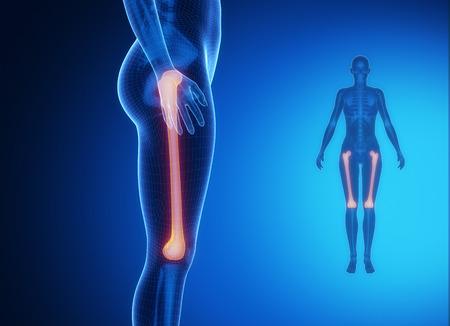 pubis: FEMUR blue x--ray bone scan