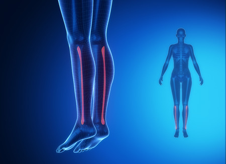 axial: FIBULA blue x--ray bone scan