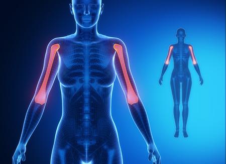 humerus: HUMERUS blue x--ray bone scan