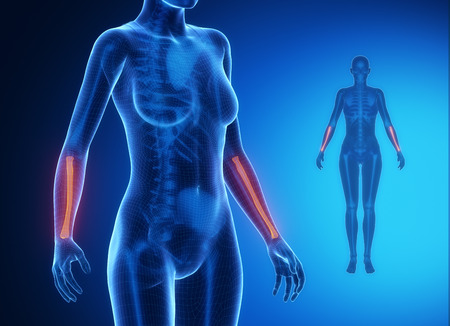 axial: RADIUS  blue x--ray bone scan Stock Photo