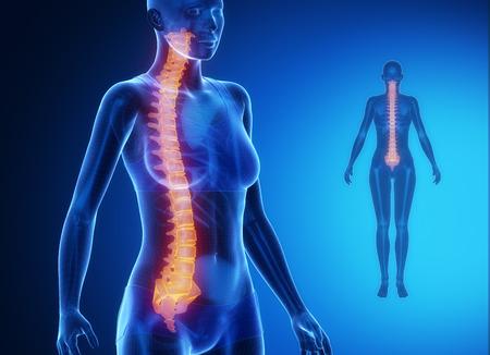 paraplegia: SPINE blue x--ray bone scan Stock Photo