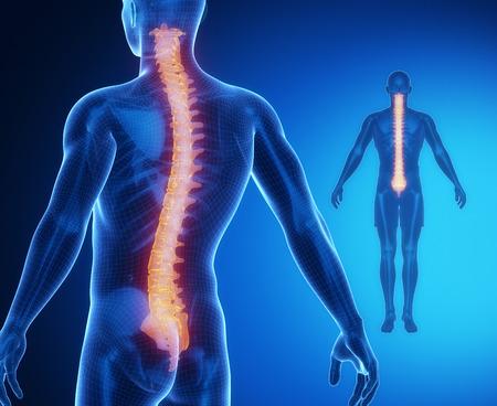 osteoporosis: Exploraci�n de rayos X COLUMNA anatom�a �sea Foto de archivo