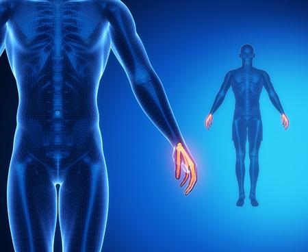 axial: WRIST bone anatomy x-ray scan