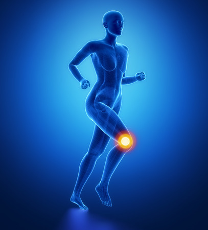 flexion: Injured knee with highlights Stock Photo