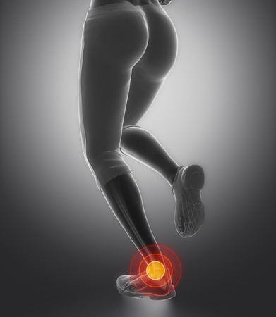 broken knee: Injured Ankle  and achilles tendon
