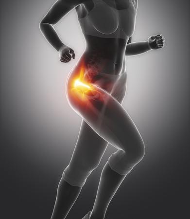 Dijbeencomponent hoofd pijn - heupblessure begrip Stockfoto