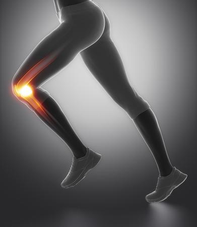 スポーツ傷害のメニスカスと膝に焦点を当ててください。 写真素材