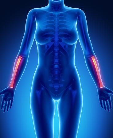 flail: RADIUS  blue x--ray bone scan Stock Photo