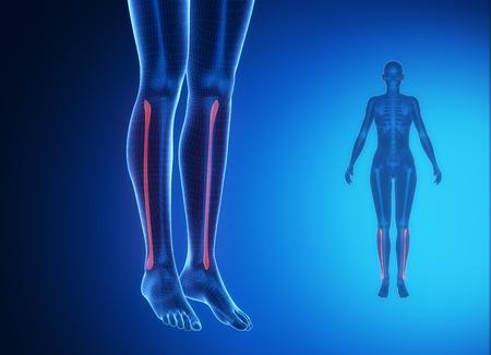pubis: FIBULA blue x--ray bone scan