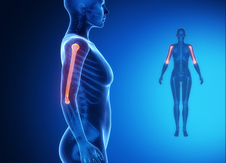 Gammagrafía ósea ray - HÚMERO azul x
