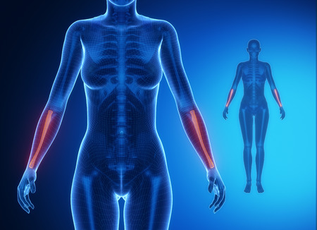 RADIUS  blue x--ray bone scan Stock Photo