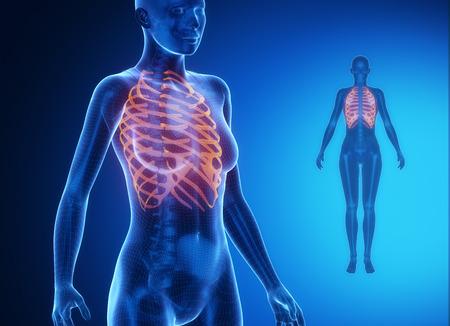 axial: RIBS  blue x--ray bone scan