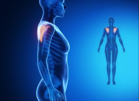scapula: SCAPULA blue x--ray bone scan
