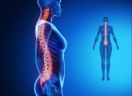 columna vertebral: Gammagraf�a �sea ray - COLUMNA azul x