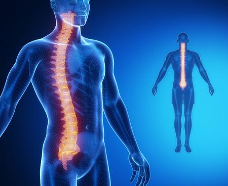 SPINE bone anatomy x-ray scan Standard-Bild