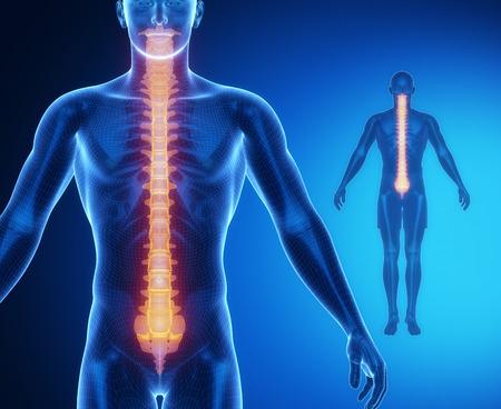 paraplegia: SPINE bone anatomy x-ray scan Stock Photo