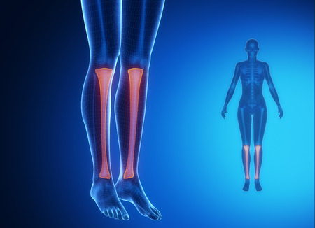 axial: Tibia anatomy medical scan Stock Photo
