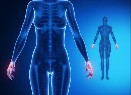 wrist: WRIST bone anatomy x-ray scan
