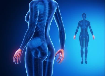 flail: WRIST bone anatomy x-ray scan