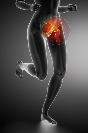 femoral head: Running woman - hip anatomy