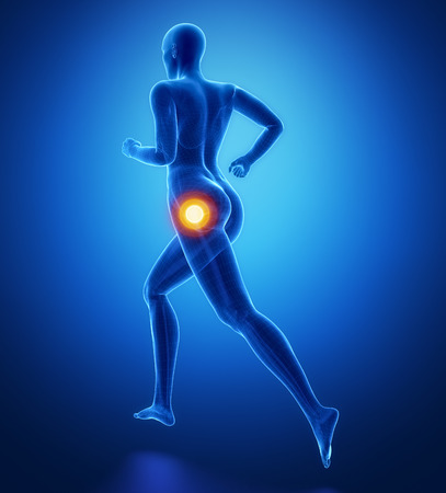 femoral head: Focused on hip in sports injuries Stock Photo