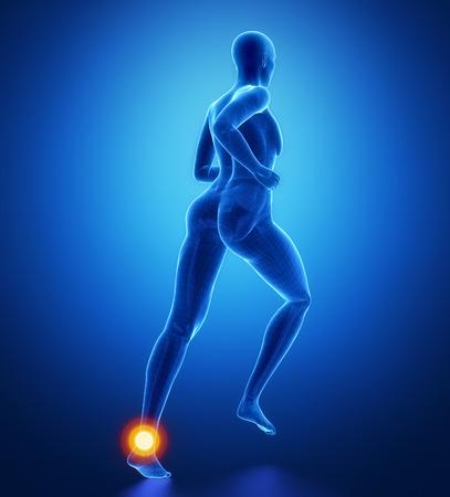 flexion: Ankle injury
