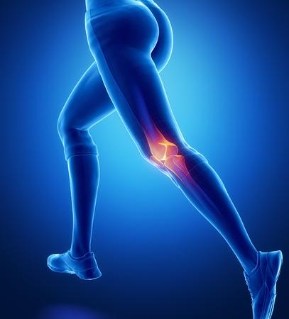 de rodillas: Rodilla lesionada con reflejos