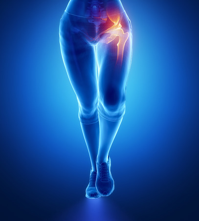 Pain in hip Stock Photo