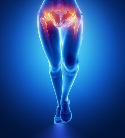 femoral head: Hip injury