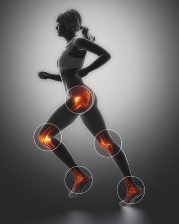 스포츠에서 가장 다리 부상 regoins - 발목, 엉덩이, 무릎