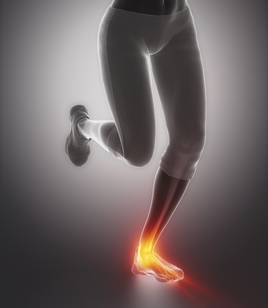 ankle: Ankle pain concept