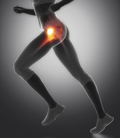 Femural head pain - hip injury concept
