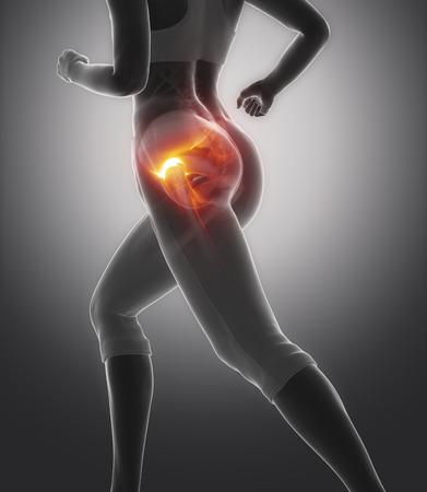 artritis: Dolor de cabeza femoral - concepto de lesión en la cadera Foto de archivo