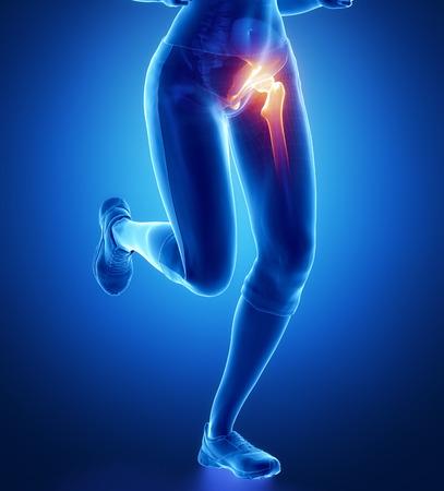dolor muscular: Dolor en la cadera Foto de archivo
