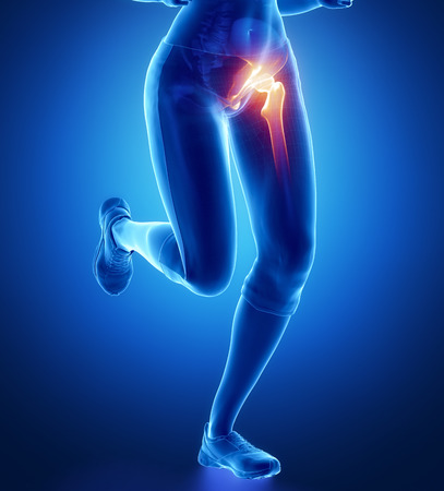 head pain: Pain in hip Stock Photo