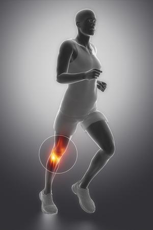 FOcused on knee Stock Photo