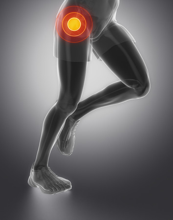 femoral head: Focused on hip joint Stock Photo