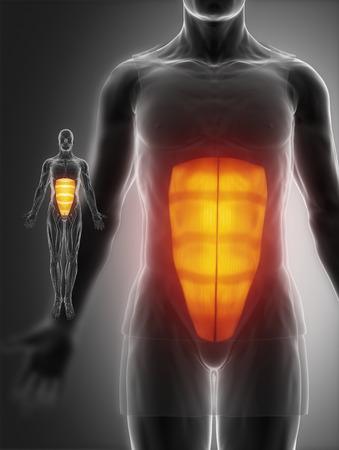 broken back: rectus abdominis