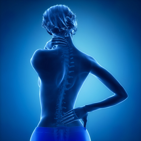 anatomy naked woman: Spine injury pain in sacral and cervical region concept Stock Photo