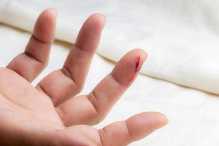 オープンの出血で負傷した指をカット