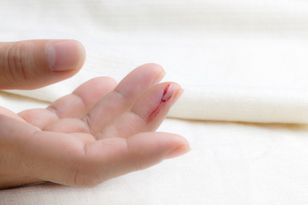 Injured finger with bleeding open cut photo