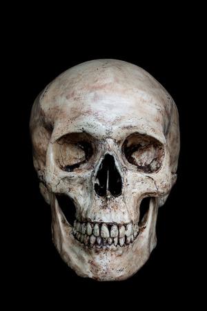 calavera: Vista lateral frontal del cráneo humano en fondo negro Foto de archivo