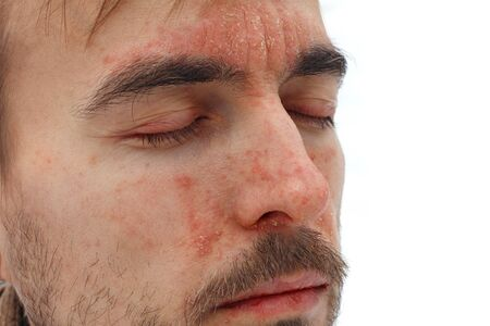 head of sick man with closed eyes with red allergic reaction on facial skin, redness and peeling psoriasis on nose, forehead and cheeks, seasonal skin problem, side view, white background