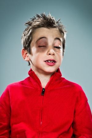 Sad Boy with a Bruise Under One Eye Over Grey Background photo