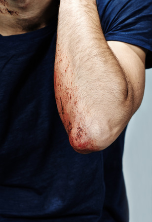 Wounded arm with blood photo