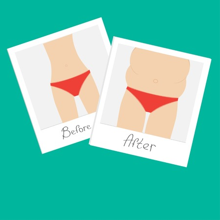 memory loss: From skinny to fat woman. Healthy unhealthy food Before after instant photo. Flat design. Vector illustration Illustration