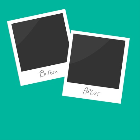 Before after instant photo. Flat design. Vector illustration Stock Illustratie