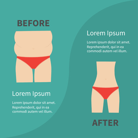 before and after: Before after infographic Woman fat and skinny figure red underwear. Healthy unhealthy lifestyle Flat design Vector illustration