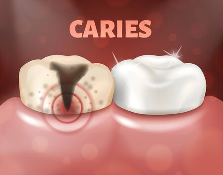 Tooth with caries and healthy tooth. 3d realistic illustration of dental disease. Deep caries on a sick tooth