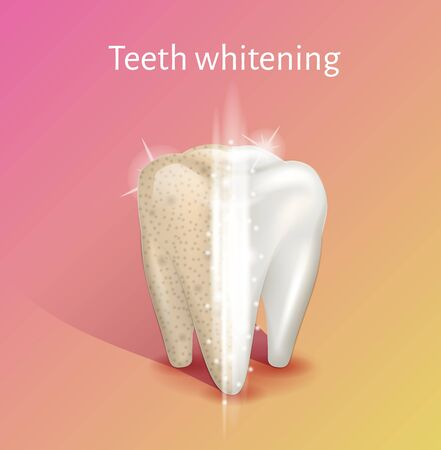 Tooth whitening in realistic 3d vector illustration.
